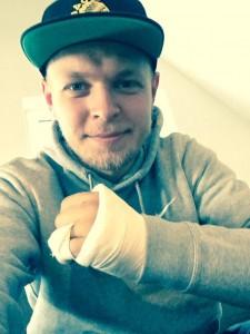 magnussen-broke-hand-15
